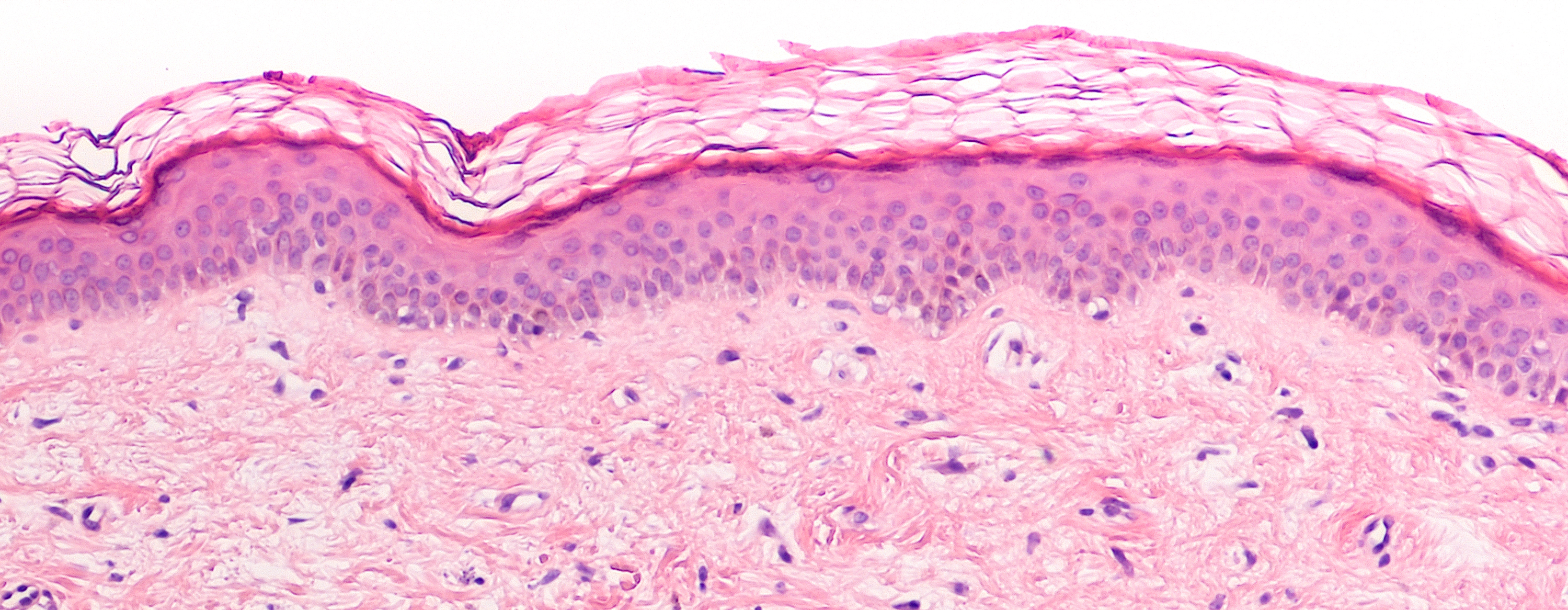 Breast tissue